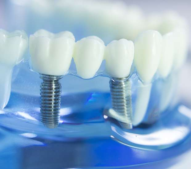 Los Angeles Dental Implants